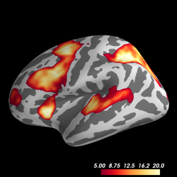 ../_images/sphx_glr_plot_fmri_activation_thumb.png
