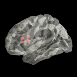 ../_images/sphx_glr_plot_transparent_brain_thumb.png